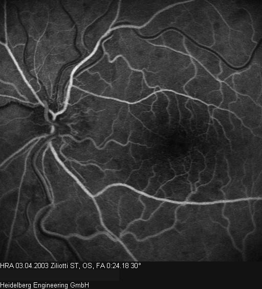 Ragione cerebrale trombosi di arteria